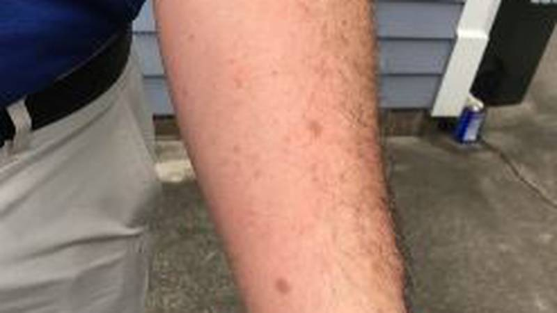 Man goes to the ER for what he thought was a bad bug bite, gets $1300 bill!