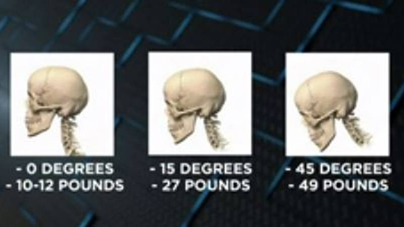 Are your smart devices becoming a pain in the neck? Tech neck is a real thing, health officials...