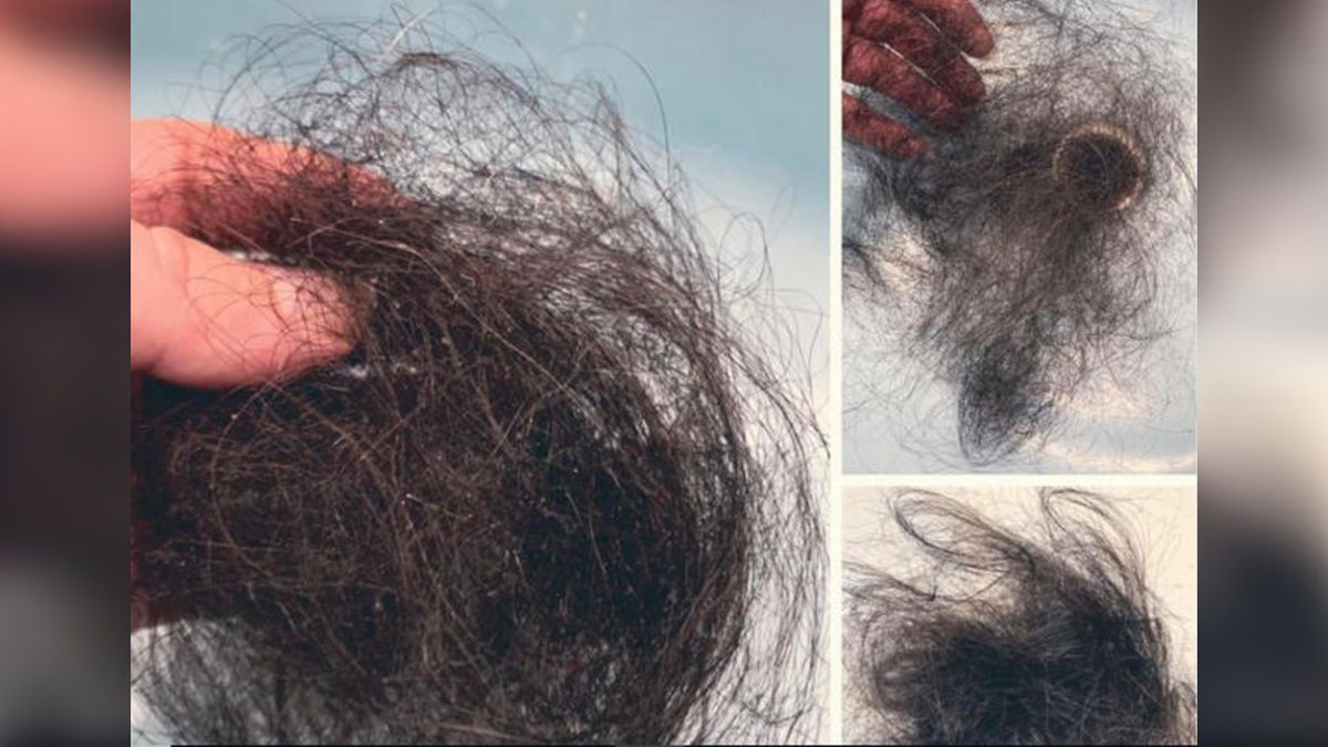 Hair loss may be a side effect of the coronavirus, according to a recent survey of people who...
