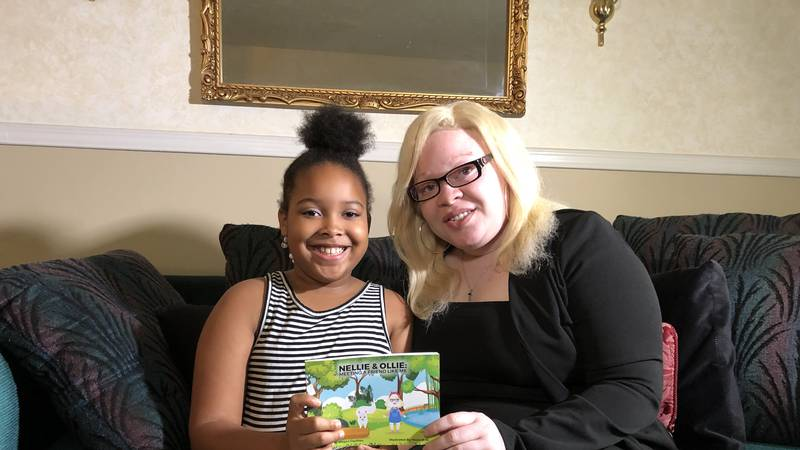 Megan Cauthen, who is albino, is publishing a children's book to teach others about Albinism.