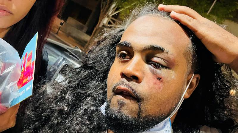 Denorver Garrett, the protester punched in the face by an LMPD officer multiple times during an...